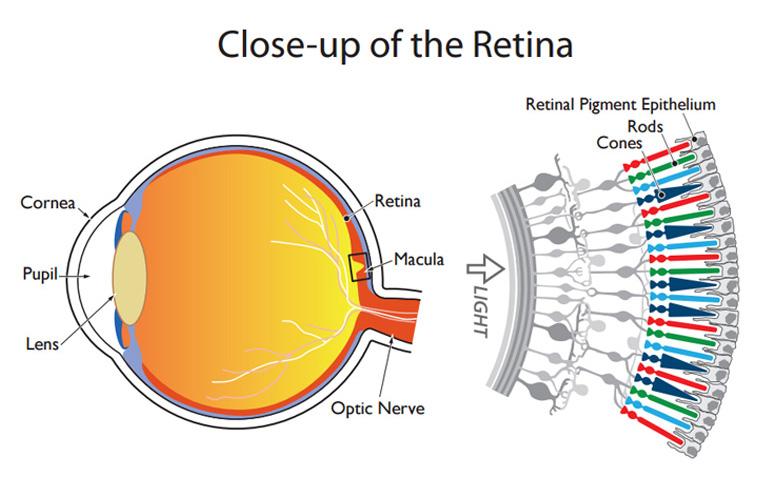 replacing retina eye