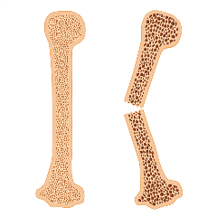 Healthy bone and broken bone with osteoporosis