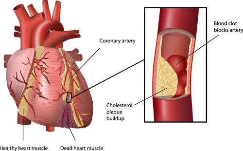 Enlisting Stem Cells in the War on Heart Disease