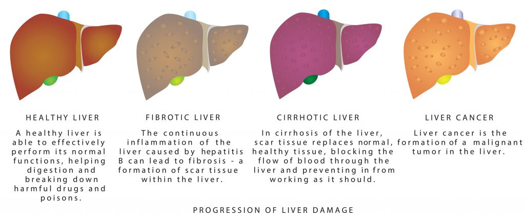 Liver disease anatomy illustration