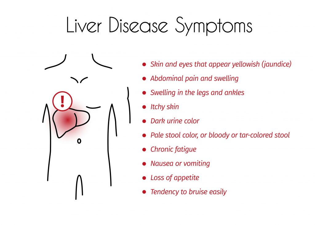 Liver Disease Symptoms Infographic of Young Man